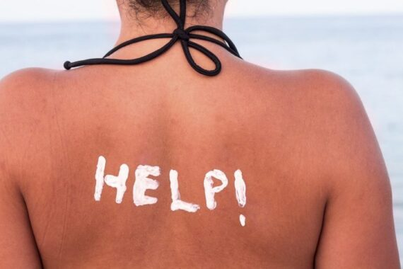 What to do for a sunburn when in Italy